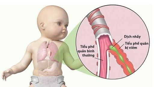 Trẻ bị viêm tiểu phế quản