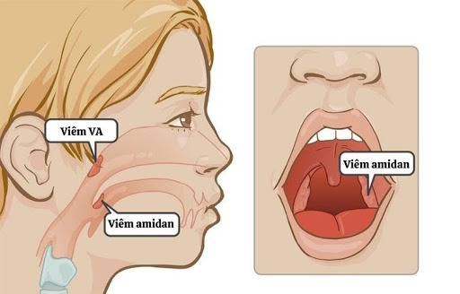 Trẻ sơ sinh bị viêm VA gây ho và hắt hơi