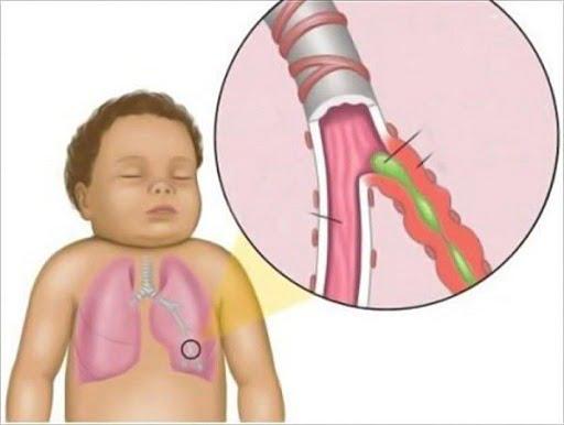 Viêm phế quản gây ảnh hưởng đến sức khỏe trẻ