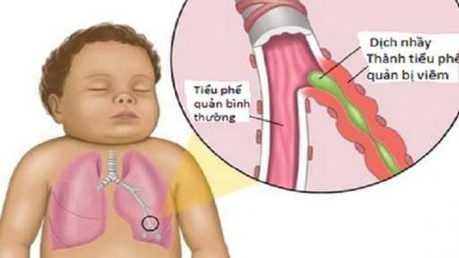80% nguyên nhân gây đờm ở trẻ sơ sinh không phải lý do bệnh lý