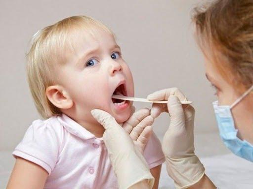 Cảnh giác khi trẻ bị viêm amidan có mủ