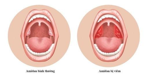 Viêm amidan khiến cơ thể phản ứng nhanh với tác nhân gây sốt