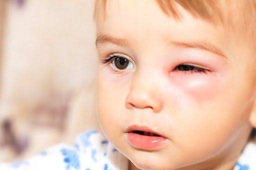 Viêm xoang khiến trẻ khó chịu ở các khu vực mắt, mũi, trán