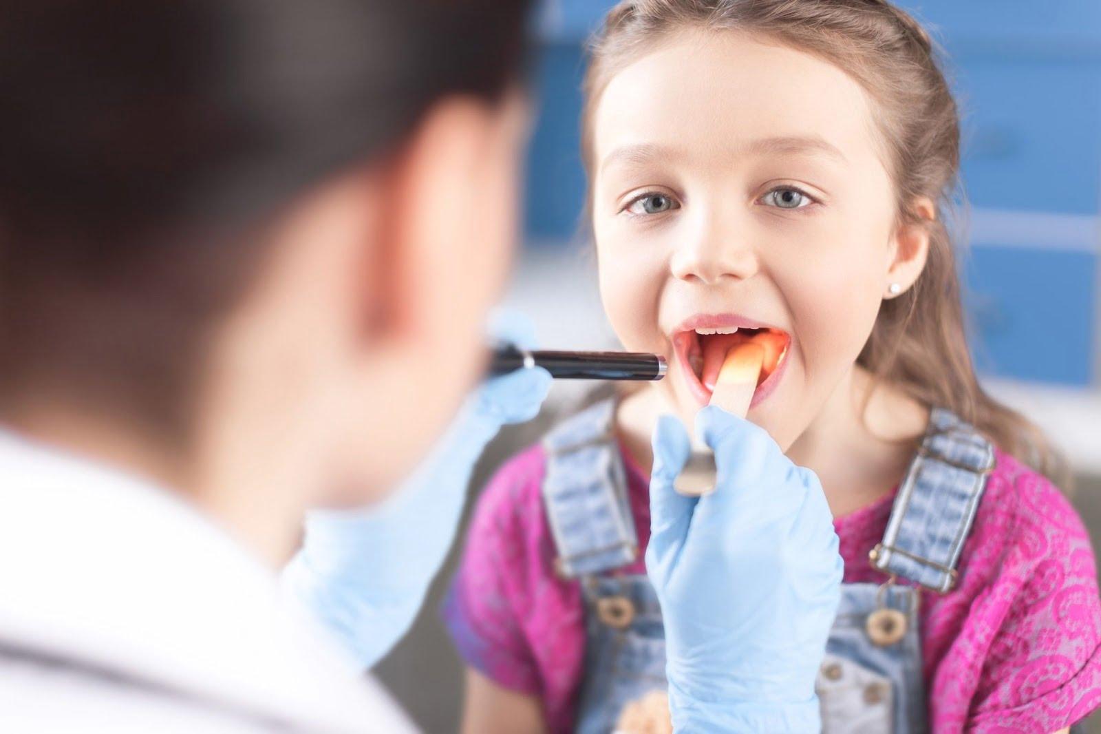 Chuyên gia cảnh báo triệu chứng viêm amidan ở trẻ em phổ biến nhất