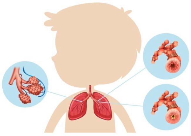 Nguyên nhân trẻ mắc viêm đường hô hấp tái lại nhiều lần